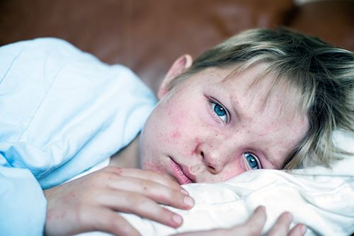 GettyImages-534079149measles